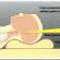 Как правильно подобрать ортопедическую подушку при шейном остеохондрозе